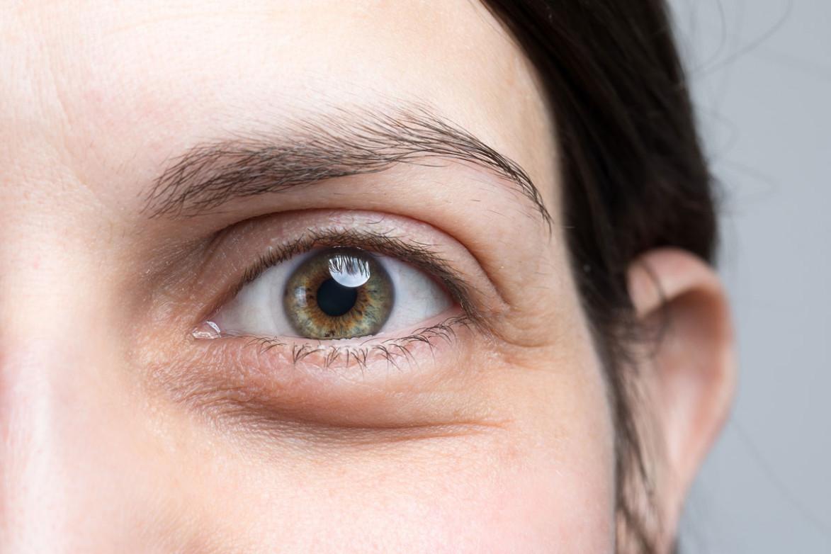 Как Убрать Мешки Под Глазами Чайными Пакетиками - основные характеристики